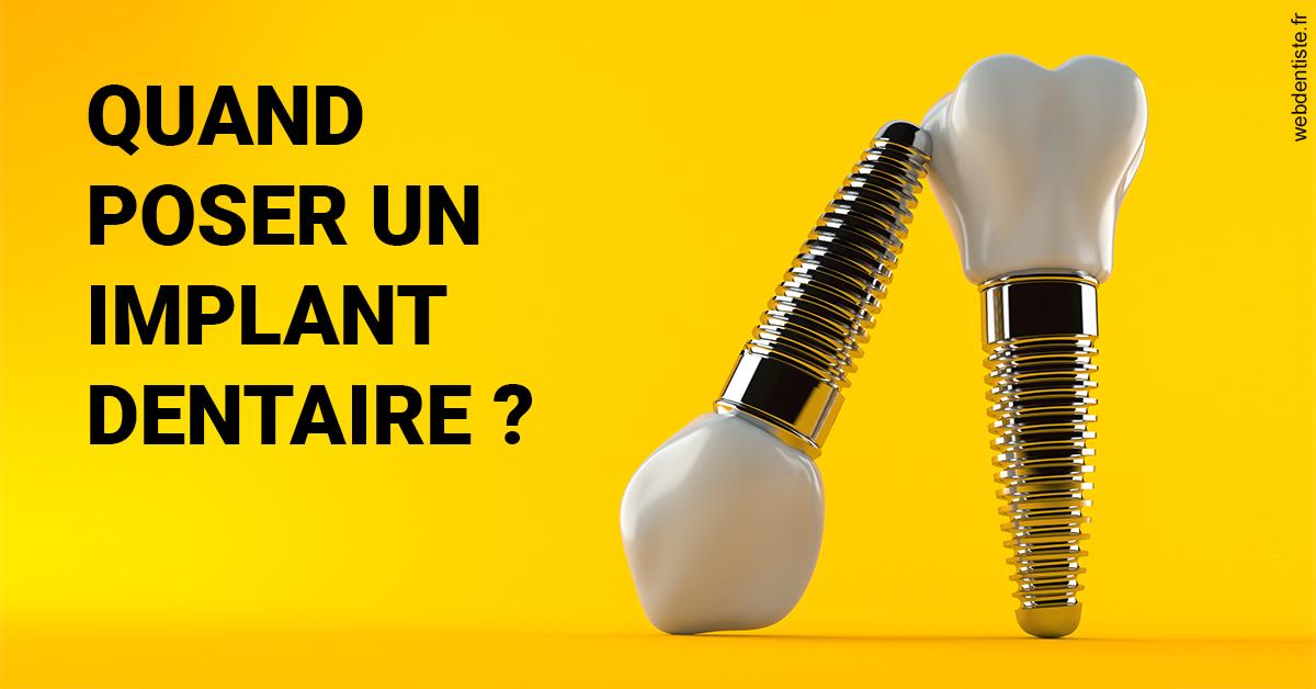 https://dr-veronique-amard.chirurgiens-dentistes.fr/Les implants 2